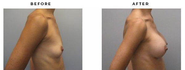 Before and After Photo Galleries - Gemini Plastic Surgery - Rancho Cucamonga, California