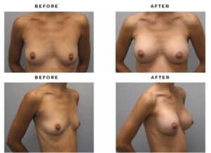 Breast Implant Before and After Photo Galleries - Gemini Plastic Surgery - Dr Della Bennett - San Bernadino, California