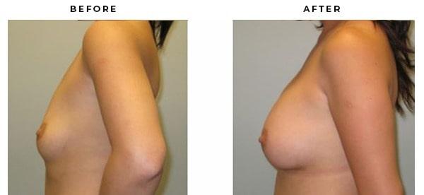 Before & After Breast Implant photo albums   Gemini Plastic Surgery   Huntington Beach, California
