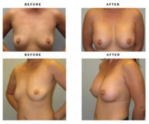 Before & After Photo Galleries of Breast Implant Procedures. Gemini Plastic Surgery. Rancho Cucamonga