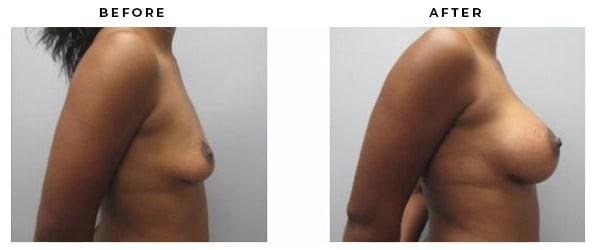 Boob Job Before & After Photos. Gemini Plastic Surgery   Corona, California