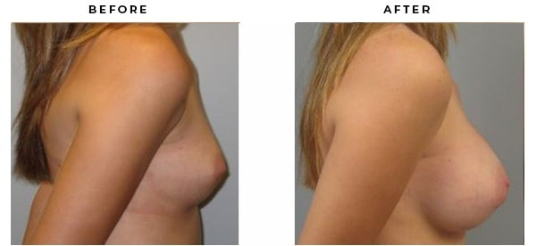 Before & After Breast Augmentation Photos from Top Plastic Surgeon Dr. Della Bennett in Beverly Hills, California