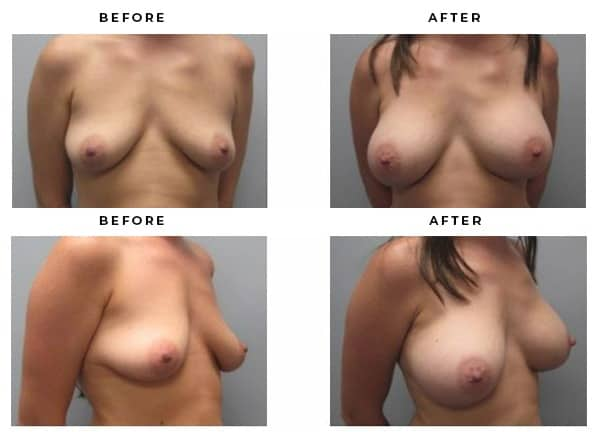 Before & After Breast Augmentation · Case Study 2115 · Gemini Plastic Surgery · Board Certified Plastic Surgeons