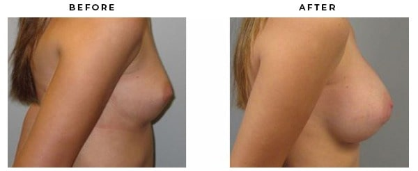 Before & After Pictures of Patients Breast Augmentation results of Dr. Della Bennett of Gemini Plastic Surgery