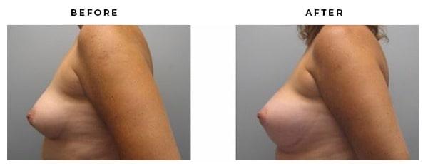 Before & After Photo- Breast Augmentation - Dr Della Bennett - Gemini Plastic Surgery