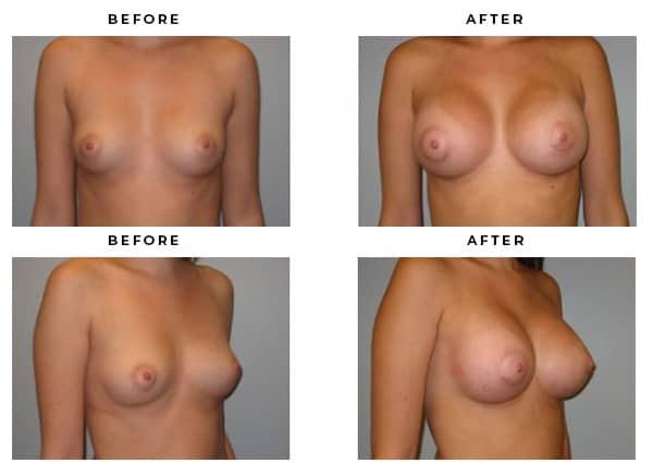 Before & After Plastic Surgeon Photos - Case Study 2143 - Gemini Plastic Surgery - Riverside County