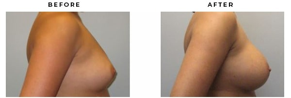 Before & After Photos. Breast Augmentation Case #3072. Dr Della Bennett MD, Gemini Plastic Surgery