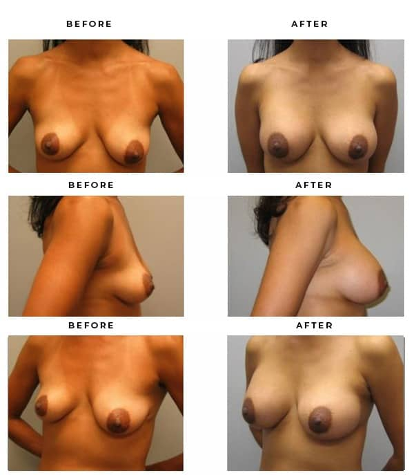Before & After Breast Augmentation Photos from Dr. Della Bennett of Gemini Plastic Surgery. Rancho Cucamonga. Case Study #3096