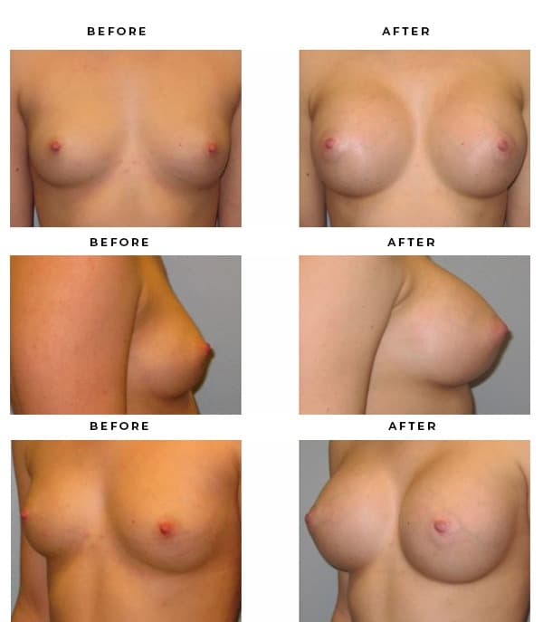 Before & After Photos- Boob Job- Dr. Della Bennett, MD. of Gemini Plastic Surgery in Rancho Cucamonga. Case Study #3120