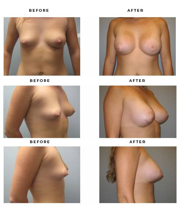 Before & After Pics- Breast Implants - Dr. Della Bennett, MD. of Gemini Plastic Surgery in Rancho Cucamonga. Top Board Vertified Plastic Surgeon. Case Study #3152