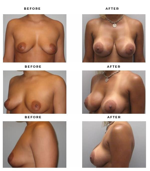 Before & After Pics- Breast Implants - Dr. Della Bennett, MD. of Gemini Plastic Surgery in Rancho Cucamonga. Best Board Certified Plastic Surgeon in Southern California. Case Study #3174