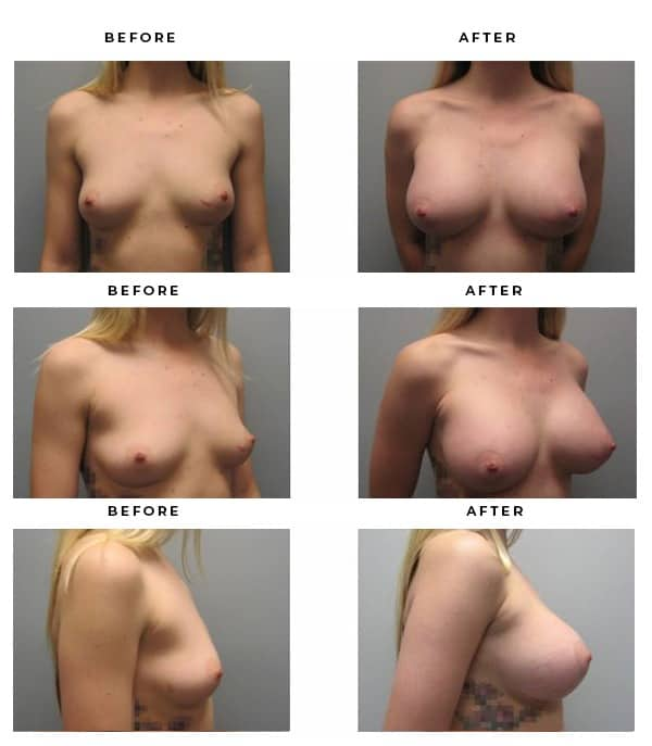 Before & After Pics- Fake Boobs - Dr. Della Bennett, MD. of Gemini Plastic Surgery in Rancho Cucamonga. Best Board Certified Plastic Surgeon in Southern California. Case Study #3190