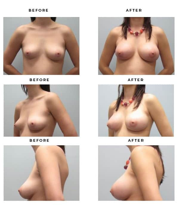 Before & After Phots- Breast Reconstruction - Dr. Della Bennett, MD. of Gemini Plastic Surgery in Rancho Cucamonga. Top Board Certified Plastic Surgeon in Southern California. Case Study #3198
