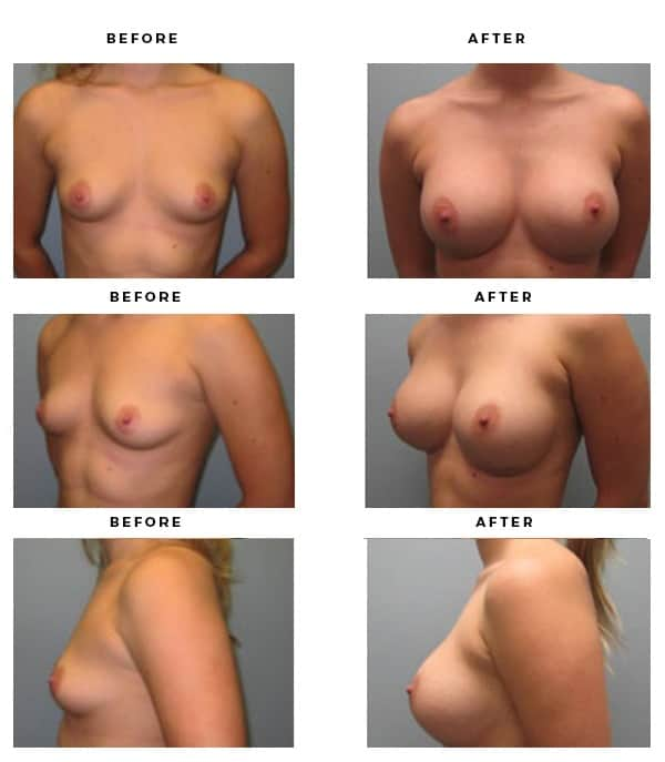 Before & After Images- Breast Implants - Dr. Della Bennett, MD. of Gemini Plastic Surgery in Riverside County. Top Board Certified Plastic Surgeon in Southern California. Case Study #4146