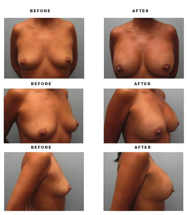 Before & After Images- Breast Implants - Dr. Della Bennett, MD. of Gemini Plastic Surgery in Rancho Cucamonga. Best Board Certified Plastic Surgeon near me. Case Study #4196
