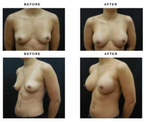 before and after breast augmentation results - case study 4614 - gemini plastic surgery - dr della bennett - hollywood, california