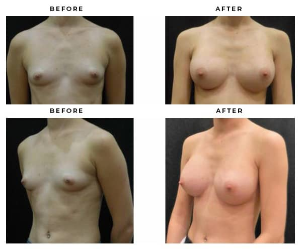 Before and After Breast Implant Gallery - Case Study 4664 - Gemini Plastic Surgery - Dr Della Bennett - Riverside County