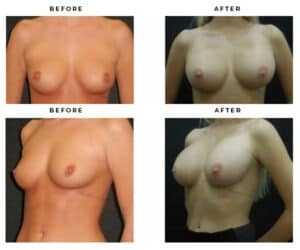 before and after - boob job gallery photos - gemini plastic surgery - los angeles, california - top plastic surgeons