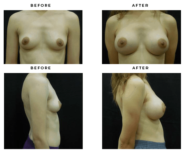 before and after- breast augmentation -case study 4709