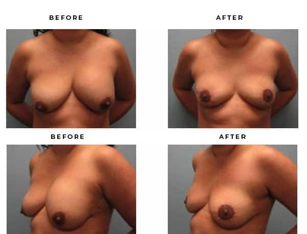 Before & After Photos- Breast Lift Surgery. Scars and End Results - Chief of Plastic Surgery- Dr. Della Bennett, MD. of Gemini Plastic Surgery - Best Breast Lift Surgery- #1 Ranked Board Certified Plastic Surgeon in Los Angeles, Orange County, Inland Empire & Riverside County, Ca. Case Study #4269