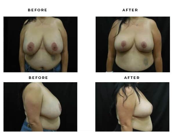 Before & After Photos- Breast Lift Procedure. View Scars and Results - Chief of Plastic Surgery- Dr. Della Bennett, MD. of Gemini Plastic Surgery - Best Breast Lift Surgery- Best Board Certified Plastic Surgeon in Rancho Cucamonga. Study #4868