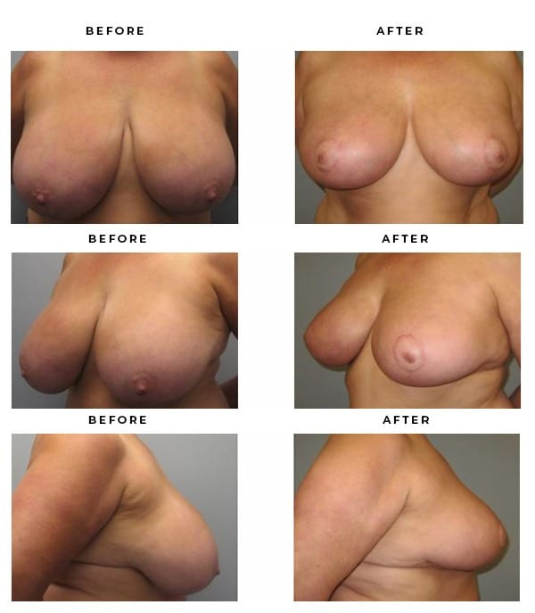 Before & After Pics- Breast Reduction - Chief of Plastic Surgery- Dr. Della Bennett, MD. of Gemini Plastic Surgery - Best Board Certified Plastic Surgeon in Rancho Cucamonga. Study #3401