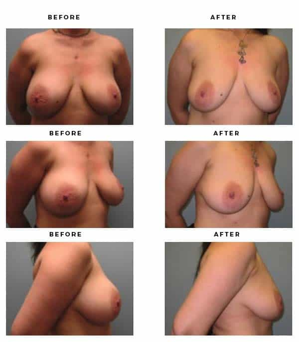 Before & After Images - Remove Breast Implants and Lift - Dr. Della Bennett, MD. of Gemini Plastic Surgery - Top Board Certified Plastic Surgeon in Southern California. - Case Study #4296