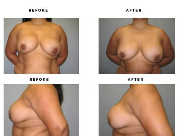 Before & After Pics- Remove and Replace Implants - Chief of Plastic Surgery- Dr. Della Bennett, MD. of Gemini Plastic Surgery - Top Board Certified Plastic Surgeon. Rancho Cucamonga. Study #2250