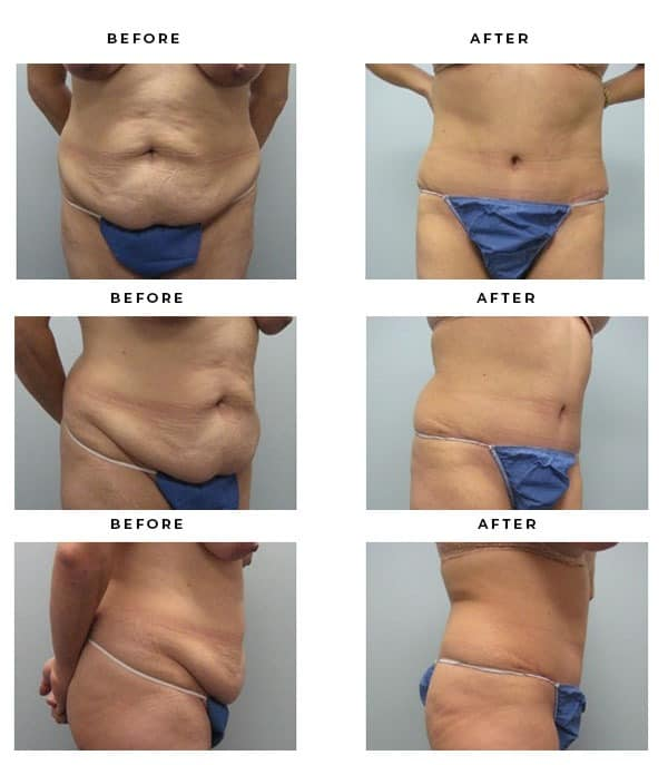 Before & After Galleries- Abdominoplasty - Dr. Della Bennett, MD. of Gemini Plastic Surgery in Rancho Cucamonga. Best Tummy Tuck Board Certified Plastic Surgeon in Inland Empire. Case Study #2346