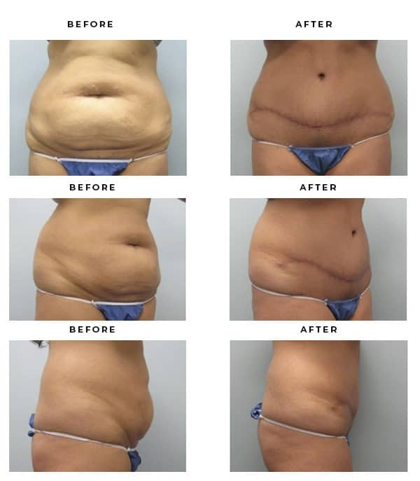 Before & After Pics- Abdominoplasty- ASPAS Surgeon - Dr. Della Bennett, MD. of Gemini Plastic Surgery in Inland Empire. Top Board Certified Plastic Surgeon in Southern California. Case Study #2352