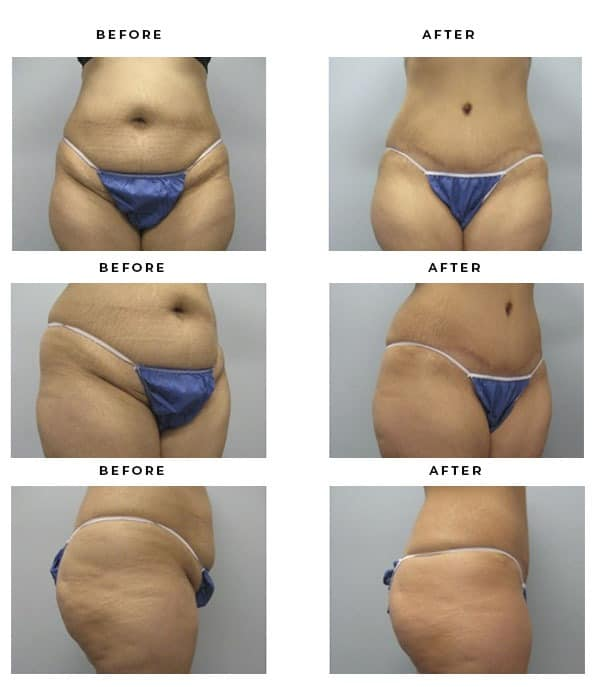 Before & After Photos- Abdominoplasty - Dr. Della Bennett, MD. of Gemini Plastic Surgery in Rancho Cucamonga. Top Tummy Tuck & Lipo Plastic Surgeon in Southern California. Case Study #2364