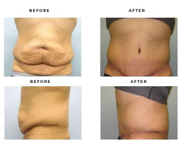 Before & After Photos- Lipo, Tummy Tuck - Dr. Della Bennett, MD. of Gemini Plastic Surgery in Rancho Cucamonga. Top Board Certified Plastic Surgeon in Rancho Cucamonga, Ca. Case Study #2376