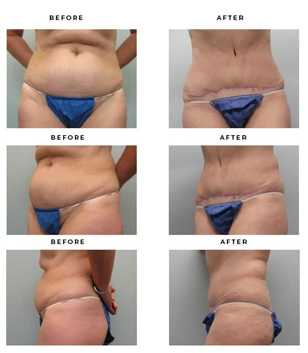 Before & After Images- Tummy Tuck Expert - Dr. Della Bennett, MD. of Gemini Plastic Surgery in Rancho Cucamonga. Best Board Certified Plastic Surgeon near me. Case Study #2837