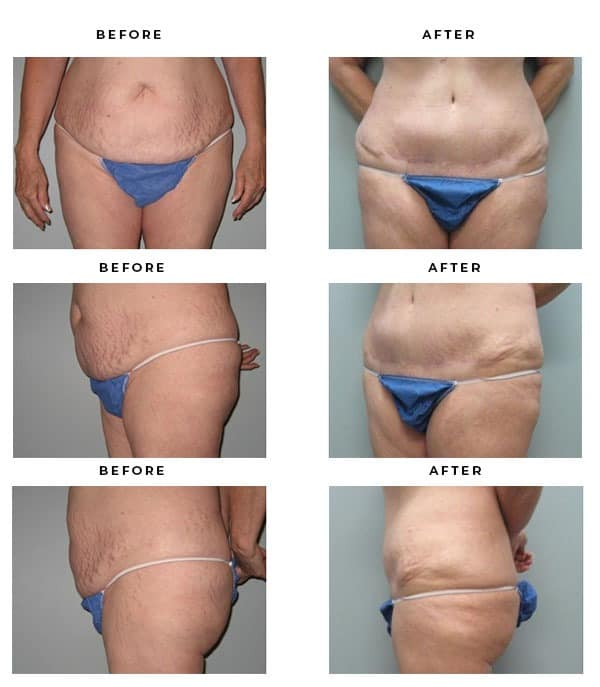 Before & After Photos - Abdominoplasty - Dr. Della Bennett, MD. of Gemini Plastic Surgery - Rancho Cucamonga, San Bernardino County Before & After Pics - Mini Tummy Tuck - Dr. Della Bennett, MD. of Gemini Plastic Surgery - Los Angeles, Orange County, Inland Empire, Riverside County - Case Study #2853