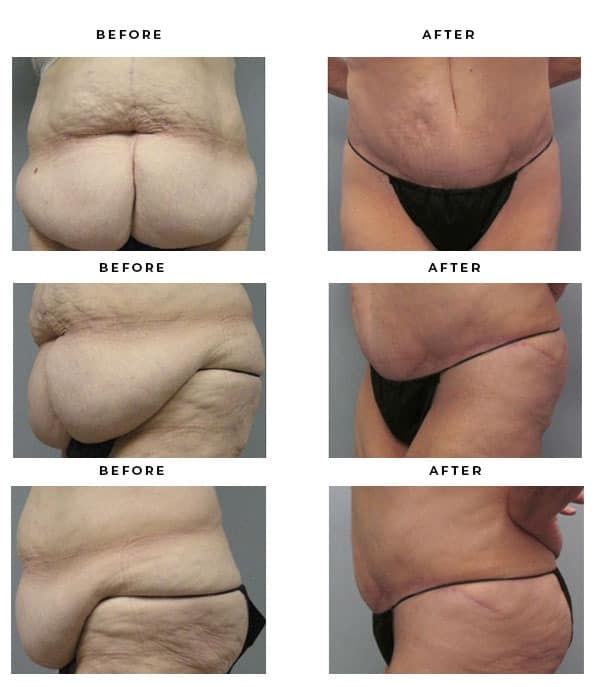 Before & After Photos- Abdominoplasty- Expert Tummy Tuck Doctor - Chief of Plastic Surgery- Dr. Della Bennett, MD. of Gemini Plastic Surgery - Top Board Certified Plastic Surgeon in Los Angeles, Orange County, Inland Empire & San Bernadino. Study #4112