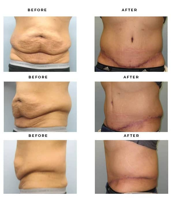 Before & After Photos- Tummy Tuck Treatments Scars and Results - Chief of Plastic Surgery- Dr. Della Bennett, MD. of Gemini Plastic Surgery - Affordable Breast Lift Surgery- Best Board Certified Plastic Surgeon in Rancho Cucamonga. Study #4183