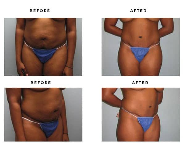 Before & After Pictures- Abdominoplasty - Dr. Della Bennett, MD. of Gemini Plastic Surgery in Rancho Cucamonga. Top Board Certified Plastic Surgeon. Case Study #4565