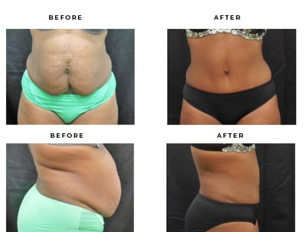 Before & After Photos- Abdominoplasty- Dr. Della Bennett, MD. of Gemini Plastic Surgery in Los Angeles, Orange County, Inland Empire & San Bernadino. Case Study #4830