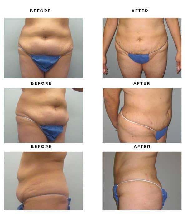 Before & After Photos- Brazilian Butoock Lift- Dr. Della Bennett, MD. of Gemini Plastic Surgery in Los Angeles, Orange County, Inland Empire & San Bernadino. Case Study #2389