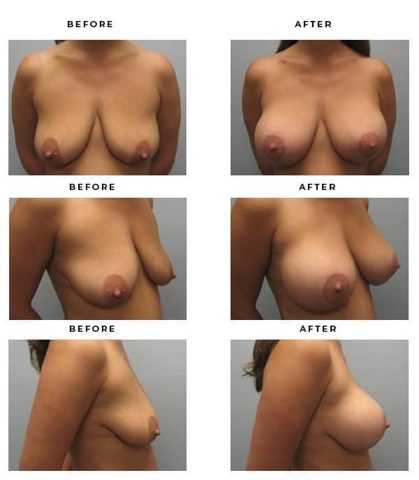 Before & After Gallery- Breast Augmentation & Lift Procedures. Best Cosmetic surgeon for beautiful, natural results. - Chief of Plastic Surgery- Dr. Della Bennett, MD. of Gemini Plastic Surgery - Best Breast Augmentation Plastic Surgeon in in Los Angeles, Orange County, Inland Empire & Riverside County, California. Case Study #2198.