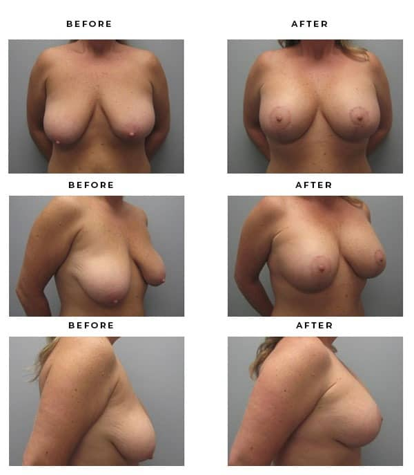 Before & After Pics- Breast Implants and Lift Recovery Information. Review Scars and End Results - Chief of Plastic Surgery- Dr. Della Bennett, MD. of Gemini Plastic Surgery - Best Breast Lift Surgery- Award Winning Certified Plastic Surgeon in Los Angeles, Orange County, Inland Empire & Rancho Cucamonga, Ca. Case Study #2222