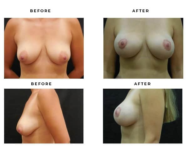 Before & After Photos- Breast Augmentation & Lift Surgery. Scars and End Results Blog - Chief of Plastic Surgery- Dr. Della Bennett, MD. of Gemini Plastic Surgery - Top Breast Lift Surgery- #1 Ranked Board Certified Plastic Surgeon in Rancho Cucamonga, California. Case Study #4690