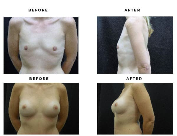 Before and After Images- Breast Augmentation - Dr. Della Bennett, MD. of Gemini Plastic Surgery in San Bernadino County. Licensed Board Certified Plastic Surgeon in Rancho, Cucamonga. Case Study #4699