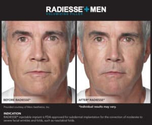 Images for Before and After Photos of Men- Radiesse Eyes- Gemini Plastic Surgery in Rancho Cucamonga, California