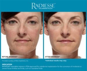 Before and After Photos- Radiesse Lips Results- Gemini Plastic Surgery in Rancho Cucamonga, California