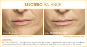 Belotero Before & After Photos: Set 4