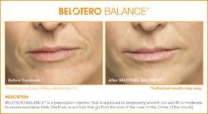 Belotero Before & After Photos: Set 4