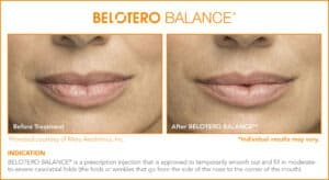 Belotero Before & After Photos: Set 5
