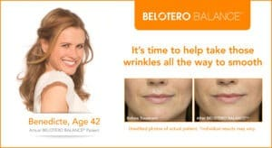Belotero Balance Photos- Before & After