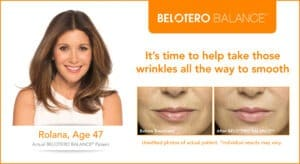 Belotero Before and After Photos
